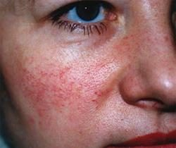 Trądzik różowaty – choroba czy defekt kosmetyczny?