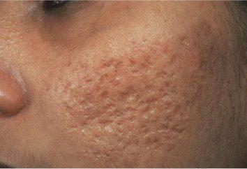 Comment éliminer l'acné cicatrice: instructions étape par étape, des photos, des conseils d'experts