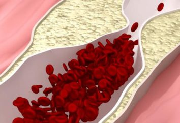 ¿Qué es la hiperlipidemia? Hiperlipidemia: causas, síntomas, tratamiento