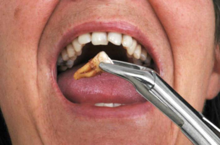zähne gezogen dickes gesicht