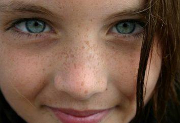 Dlaczego twarzy pojawiają się ciemne plamy: najbardziej prawdopodobne przyczyny