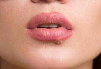Facial zimno: cechy, możliwe przyczyny i funkcje obróbki