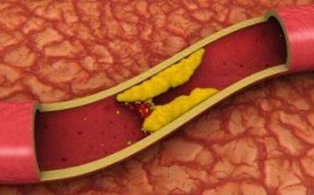 Aorty rozsiane i jego konsekwencje