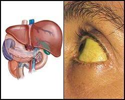 Autoimmunologiczne zapalenie wątroby. obraz kliniczny