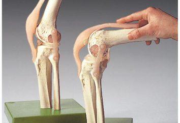 El dolor en la rodilla en el lado exterior: causas de tratamiento