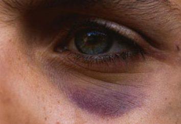 Come rimuovere cerchi scuri sotto gli occhi di essere colpito: metodi collaudati