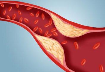 Wysoki poziom cholesterolu: Powoduje. cholesterolu do normalnego