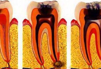 Gangreneuse pulpites: causes, symptômes, traitement