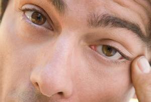 Che cosa può testimoniare spasmi delle palpebre?