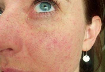Wybroczyny – czerwony punkt na twarzy