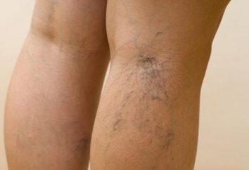 Enlevez les veines sur les jambes
