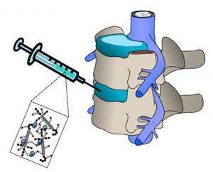 Come iniezioni ad un osteocondrosi efficace?
