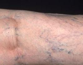 Quali sono le cause delle vene varicose sulle gambe