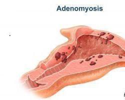 adenomyosis macicy – co to jest? macicy adenomyosis: leczenie środków ludowej, opinie