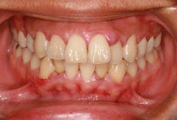 gengive gonfie, ma il dente non fa male – cosa fare? Provoca gonfiore delle gengive e trattamento