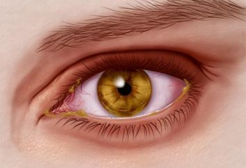 L'herpès sur l'oeil: traitement, causes, médicaments