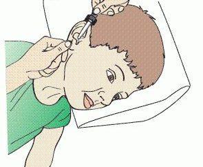 Como usar gotas para os ouvidos para as crianças?