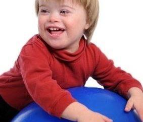 Perché i bambini sono nati con la sindrome di Down? La risposta esatta alla domanda è no