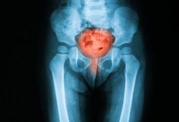 Z tego, co jest zapalenie pęcherza moczowego u kobiet? Przyczyny, metody leczenia