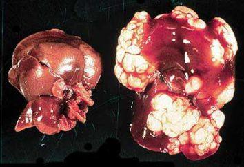 Kyste. foie échinococcose: causes, symptômes, traitement de prévention