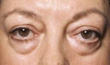 Ernia sotto gli occhi: come sbarazzarsi di senza intervento chirurgico, metodi di rimozione e raccomandazioni