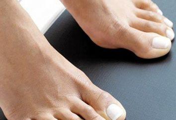 El pie de atleta: Causas, síntomas y tratamiento