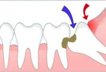 Pourquoi avons-nous besoin des dents de sagesse, en particulier la structure