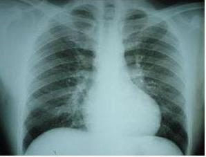 Hemosyderoza płuc: Objawy i leczenie