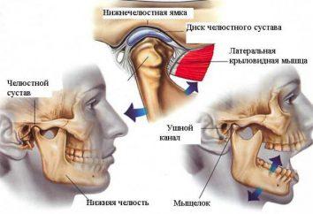 Zapalenie stawu skroniowo-żuchwowego: przyczyny i leczenie