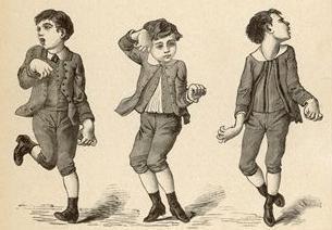 Chorea – w … pląsawica u dzieci. pląsawica reumatyczna