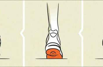 O que é pronação do pé