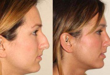 Come rimuovere una piccola gobba sul naso in modo diverso?