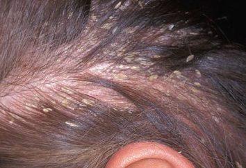 Grzybica skóry głowy: objawy i leczenie
