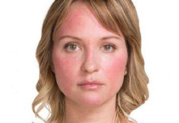 Przyczyny trądziku różowatego na twarzy i sposoby leczenia