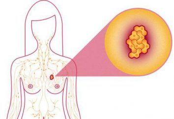Grau 3 do cancro da mama: tempo de vida. Terapia de cancro da mama