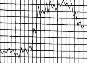 Types courbes de température pour diverses maladies