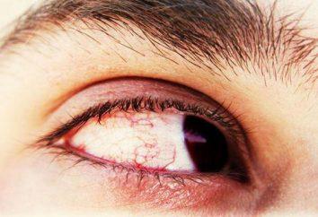 Flash negli occhi: cause, sintomi