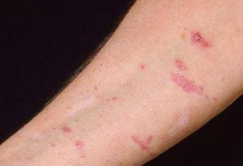 Dlaczego plamy na skórce skóry?