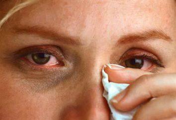 Restauración de la visión y el tratamiento del ojo remedios populares