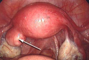 Endometrium polip: leczenie bez operacji i opinie
