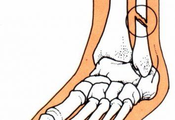 Primeros auxilios (PMP) en las fracturas: superposición pinza hemostática arnés neumático, el transporte de la víctima