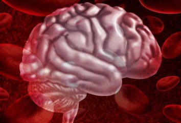 Blutungen im Gehirn: Symptome, Behandlung, Folgen und Prognose