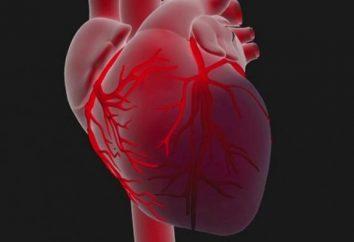 Miocardio – è una malattia del miocardio …