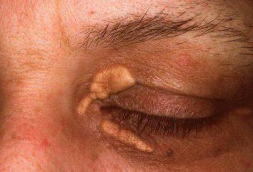 Przyczyny, objawy, profilaktyka i leczenie cechy żółtak wieku
