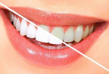 Wybielające paski Crest 3D White: recenzje. Wybielanie zębów: pieniądze, ceny, opinie