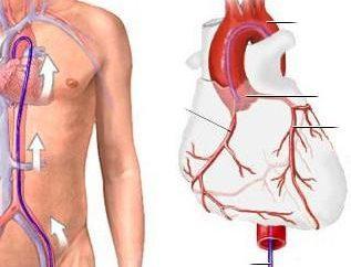 vasi coronarici del cuore: come fare, costi, le complicazioni. vasi coronarici del cuore: recensioni