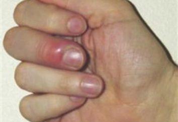 Prowadzi się palec na rękę: przyczyny, objawy i leczenie