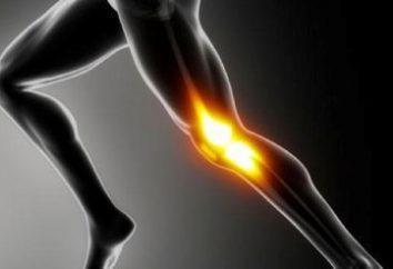 joelheiras para a fixação do joelho: uma descrição, tamanho, comentários