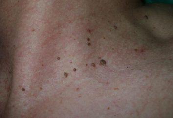 Como se livrar das verrugas no pescoço: estratégia de tratamento