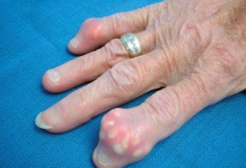 Gout – was ist diese Krankheit?